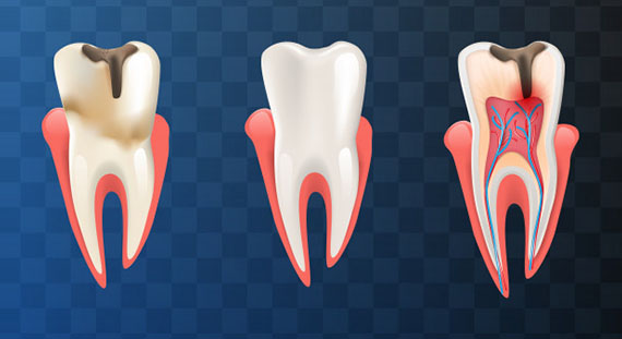What Happens During The Procedure For Root Canals