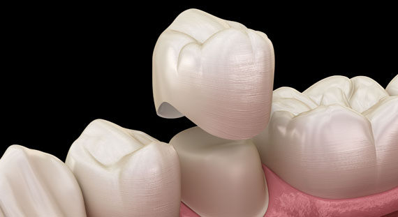 Who Is A Good Candidate For Dental Crowns