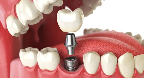 Who Is A Good Candidate For Dental Implants