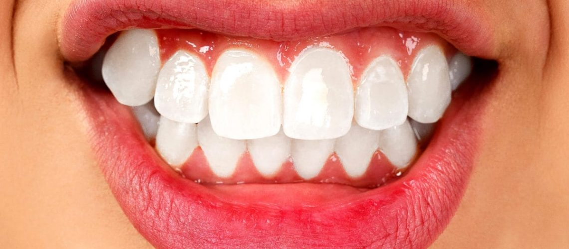 Dental Bruxism: Discover The Causes, Symptoms And Treatment To Solve It